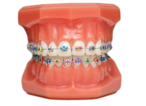 Diagram of teeth with braces on it