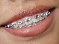 Woman smiling showing her braces.