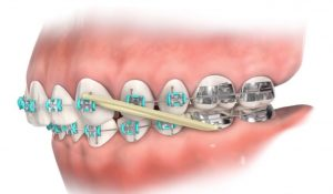 diagram of elastics used on braces.