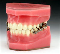 model of herbst appliance used for orthodontic treatment.