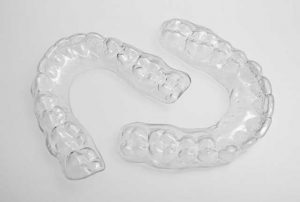 Clear retainers.