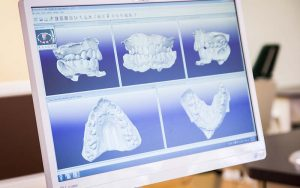 ITero digital scanner takes virtual 3D impressions of your teeth.