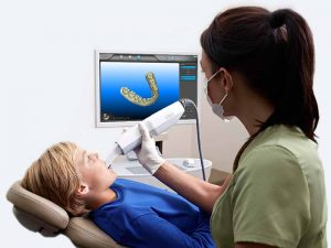 Orthodontist using the ITero 3D Digital Scanner to take virtual impressions of a patients teeth.